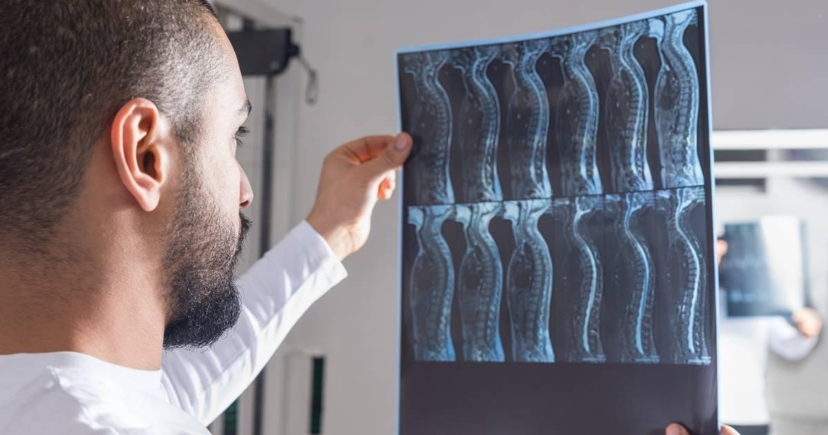Lesiones de la Médula Espinal